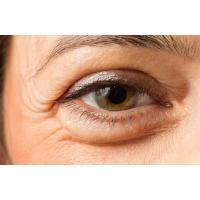 Айлис (Eyeliss), 5 грамм